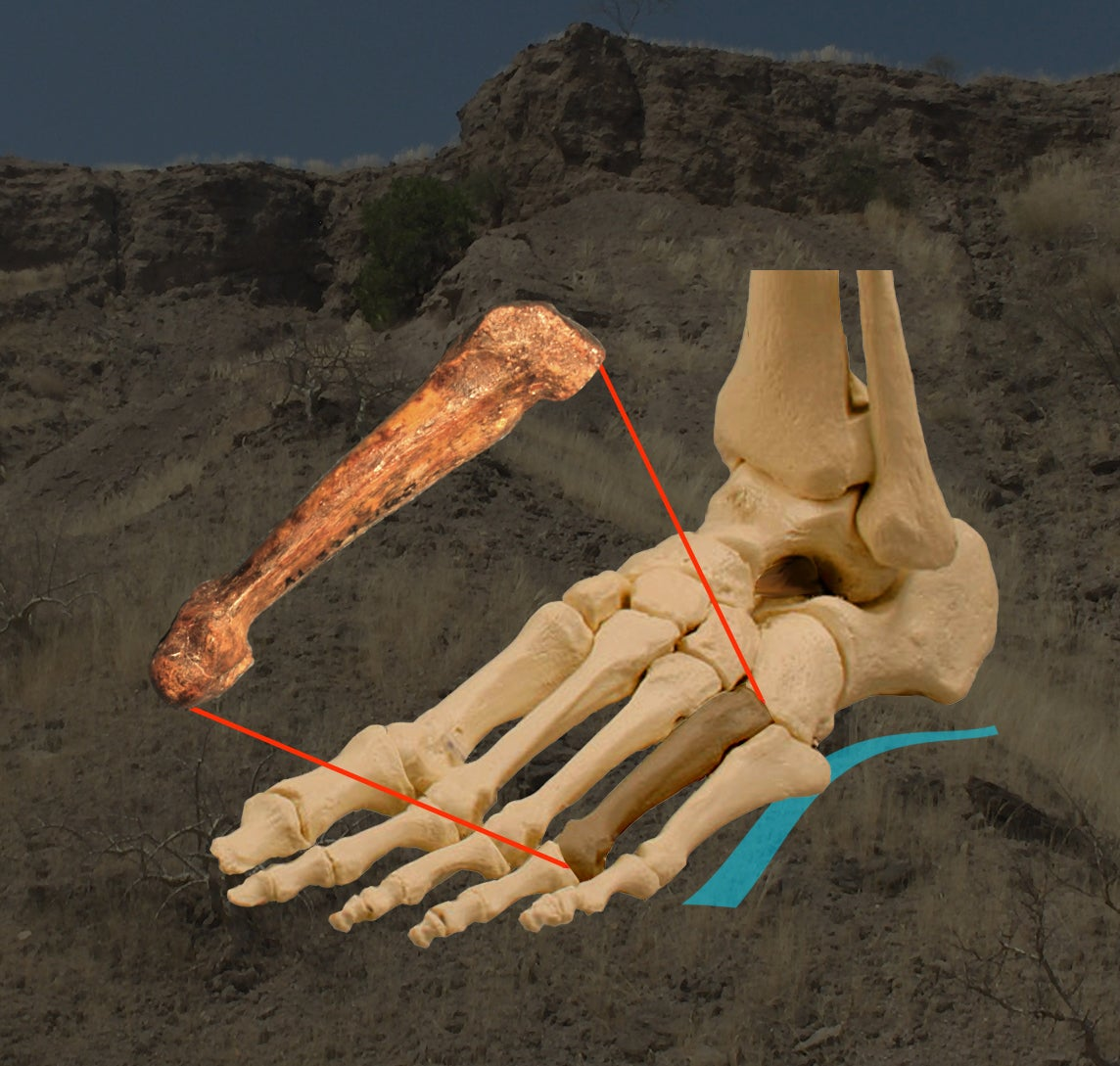 foot image with bone
